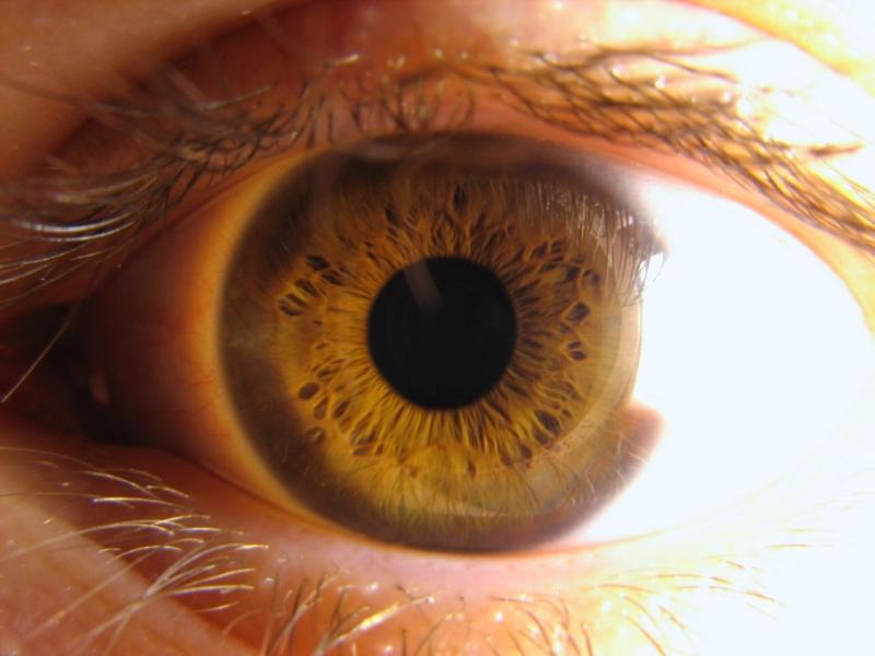 Laserová operácia očí hrá v súčasnosti prim - TOP TRENDY 8a529c49ab3